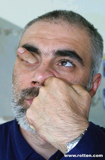 fingerhead